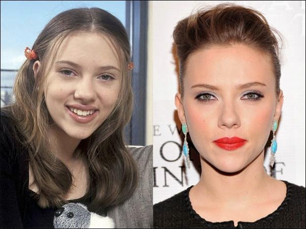 Scarlett Johansson Nose Job vor und nach Nasenkorrektur Fotos