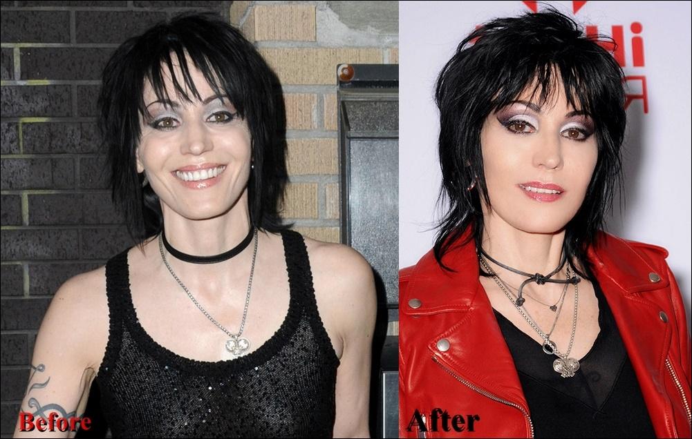 Joan Jett Plastische Chirurgie vor und nach Fotos Gesicht Bilder